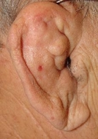 230px-Cauliflower_Ear